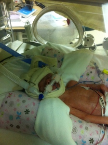 What it took to keep her from pulling all her tubes out. Strong and determined even at 1lb 12oz.